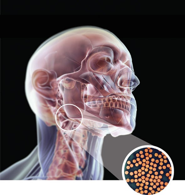Hpv cancer in males. - Hpv and cancer in males