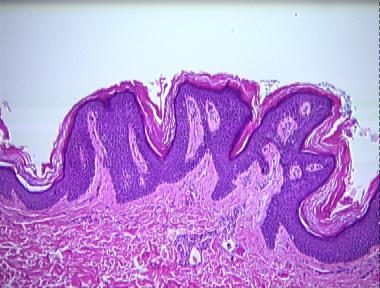 papillomatosis dermatopathology