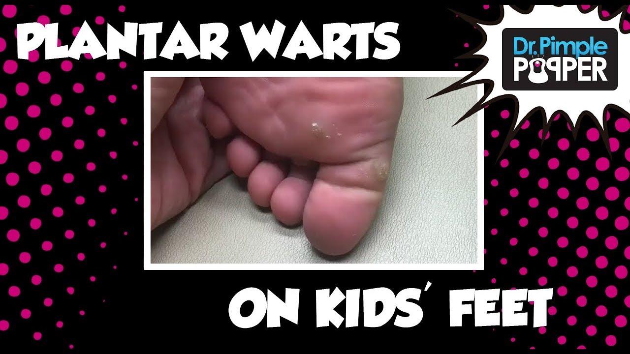 wart bottom foot child