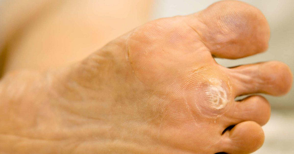 curățarea corpului cu o clismă de paraziți