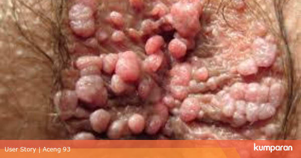 virus hpv yang tidak berbahaya