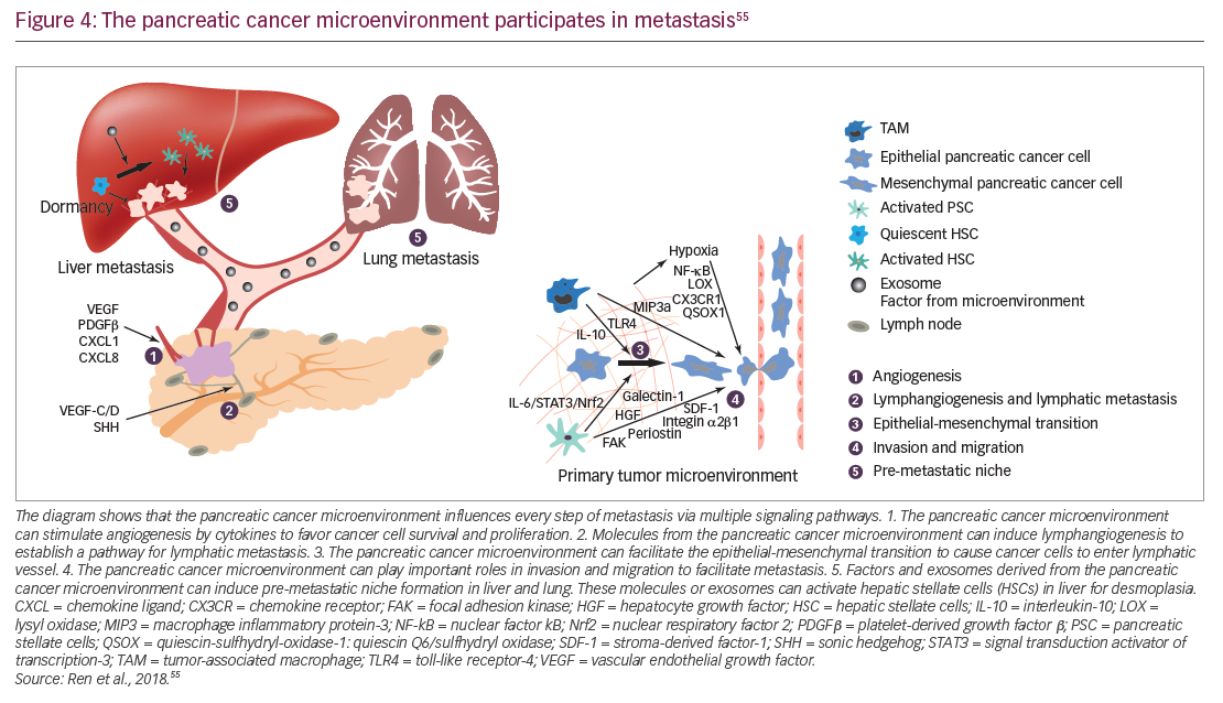 metastatic cancer pancreatic