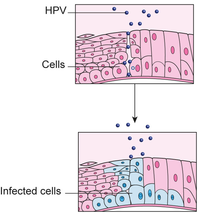 hpv infection causes cancer