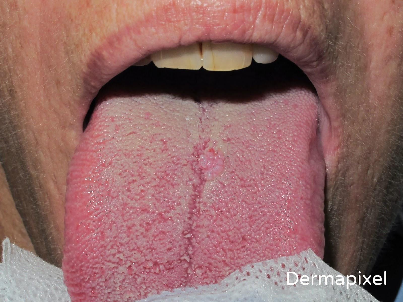 Que es papiloma canino - Papilloma virus canino
