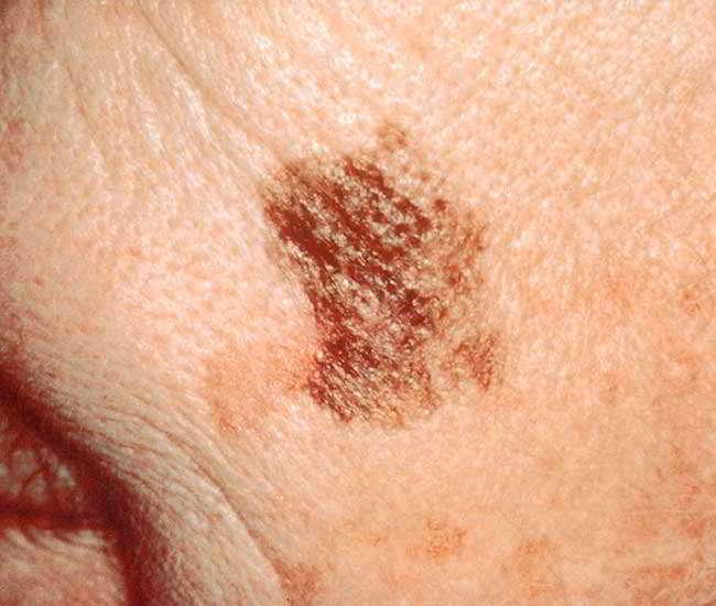 cancerul de piele pe fata)