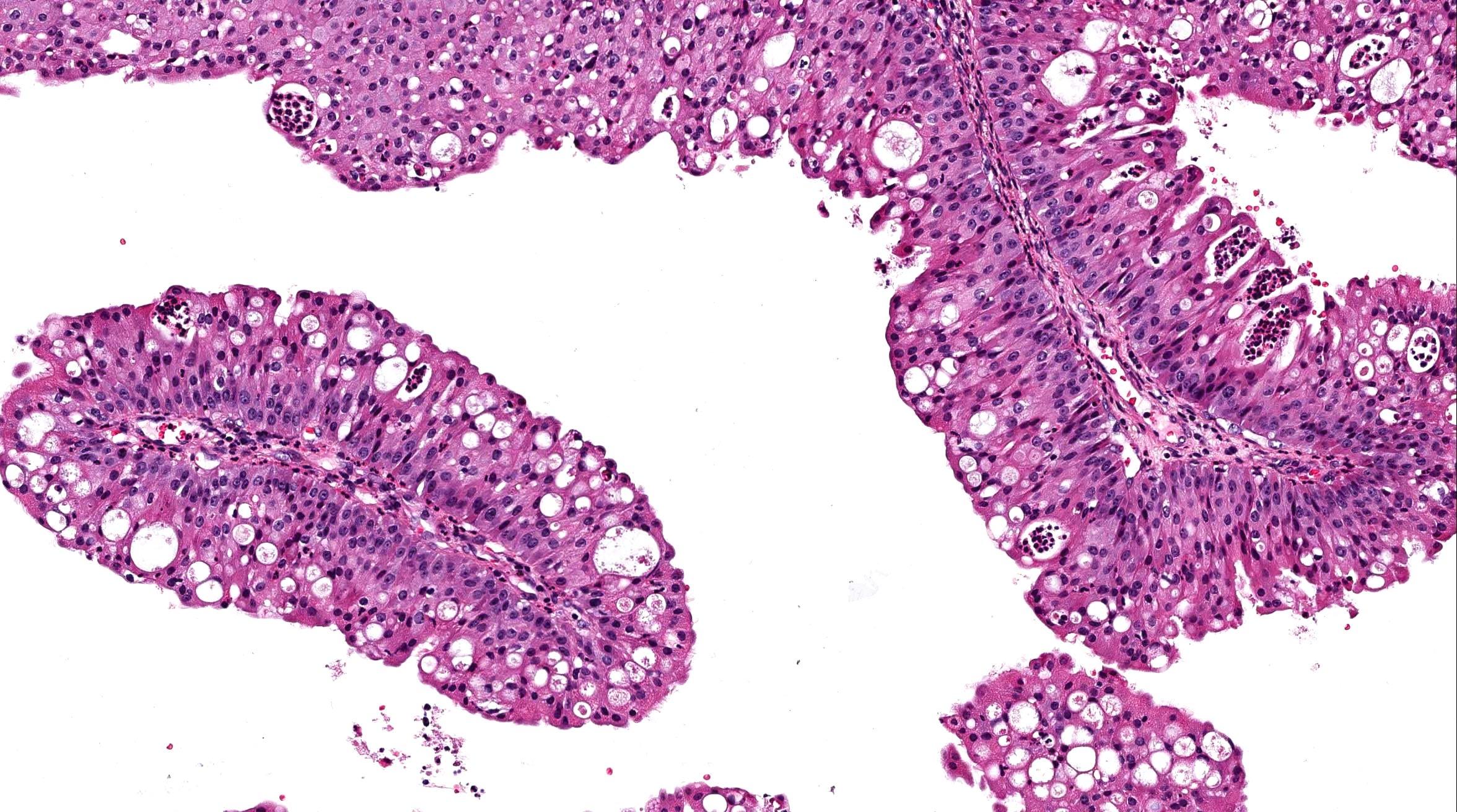 urethral papilloma pathology outlines)