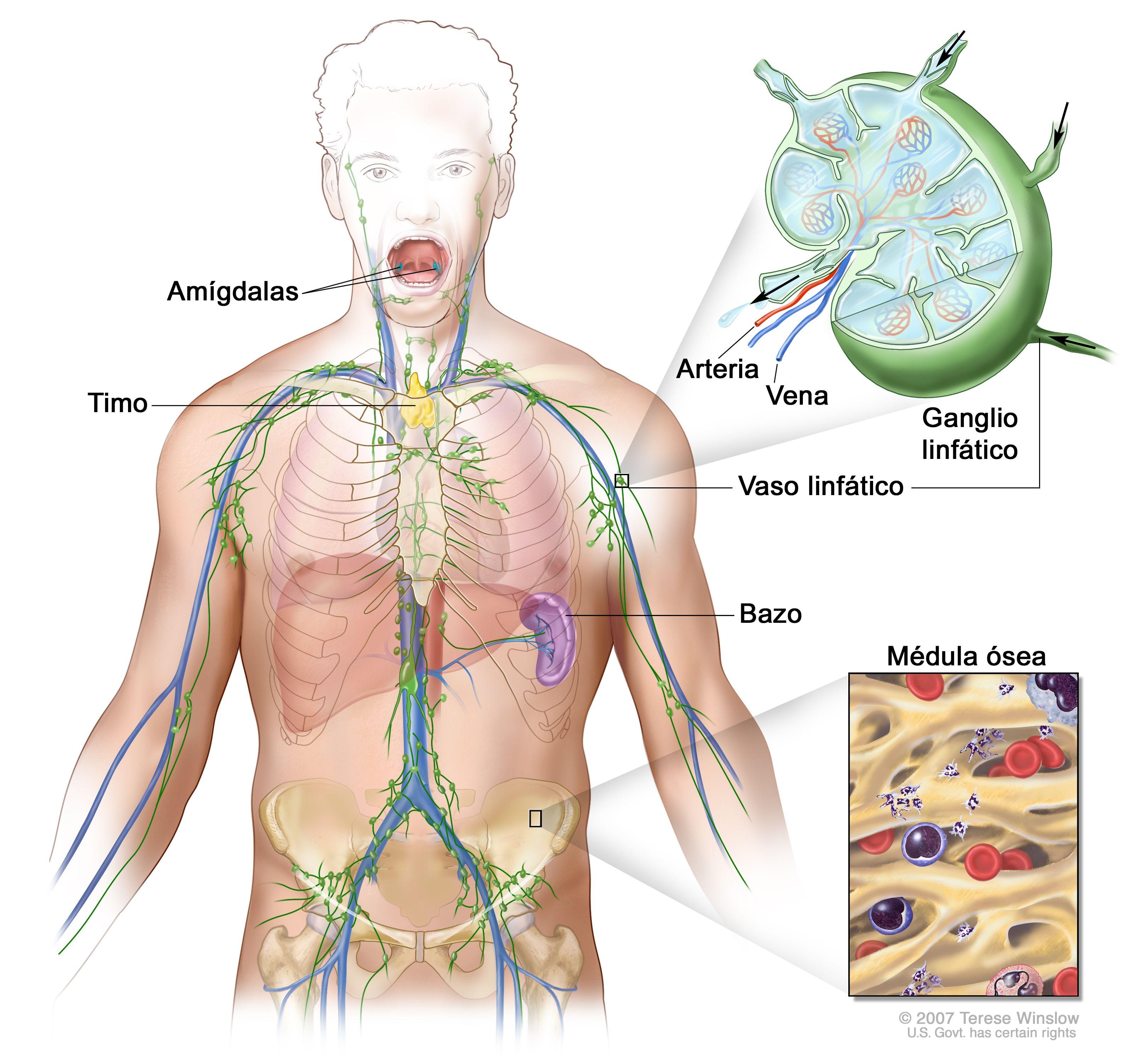 cancer linfatico hodgkin sintomas)