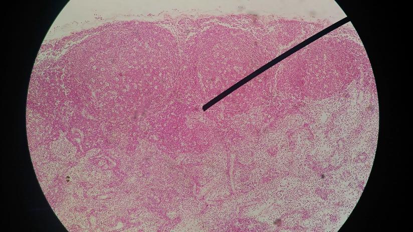 papilloma virus e biopsia)