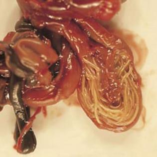paraziti intestinali droguri