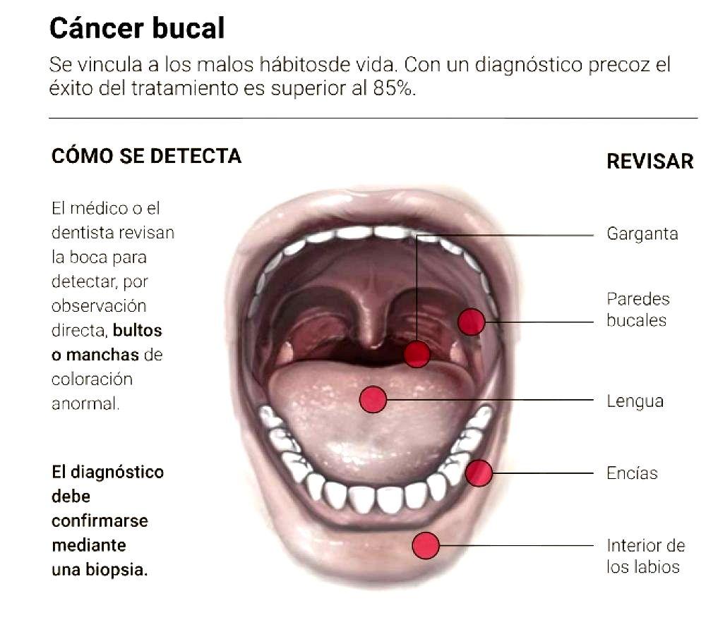 cancerul de planseu bucal