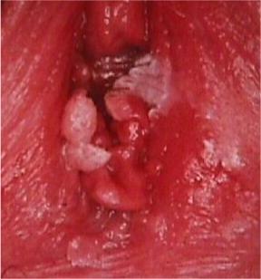 condilom vaginal acut simptomer giardia menesker