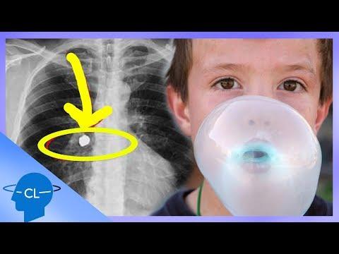 respirație de vierme linfonodi inguinali ingrossati e papilloma virus