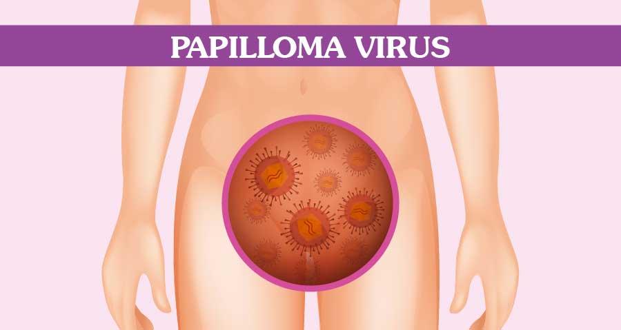 Papilloma seno terapia. Chequeo - Colorado Acces