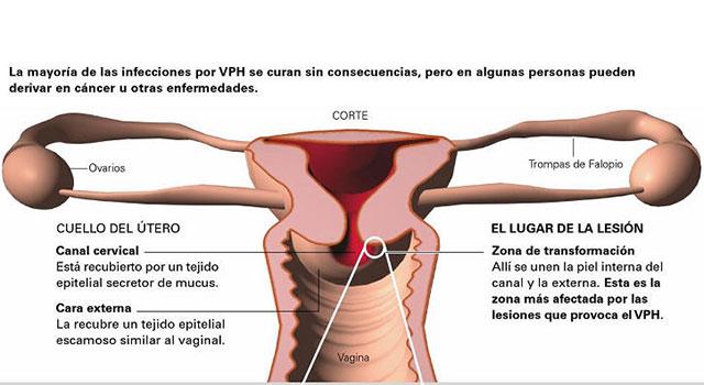 virus papiloma y embarazo)