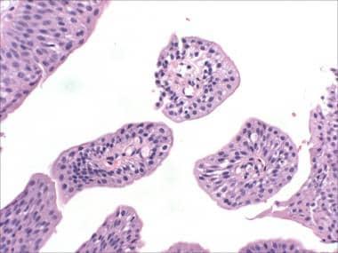 diagnosis of bladder papilloma