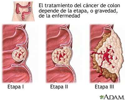 Cancer de colon pronostico.