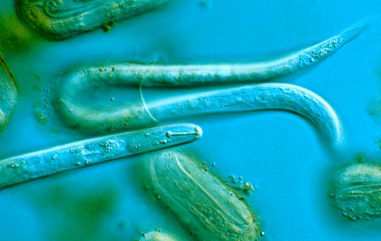 ce tipuri de viermi are o persoană polygemma pentru ficat