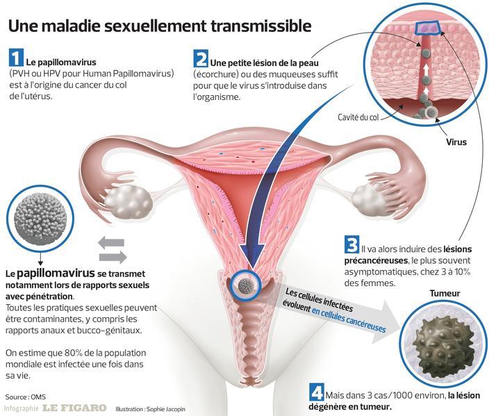 papillomavirus et grossesse cancer