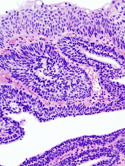nasal papilloma histopathology