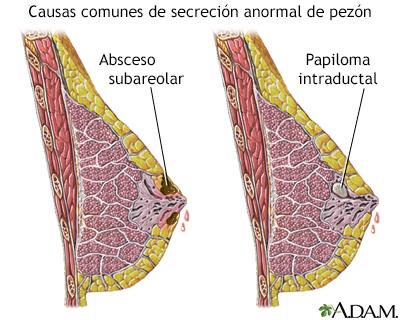 que es papiloma intraductal)