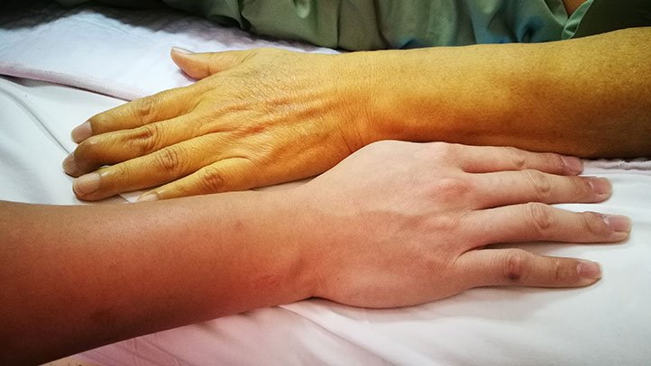 pancreatic cancer yellow skin