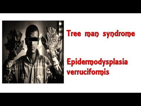 helmintox bez receptes)