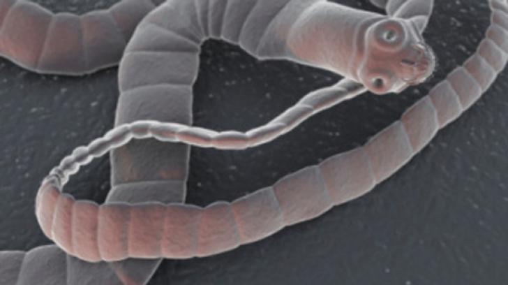 cum arată viermii de vierme