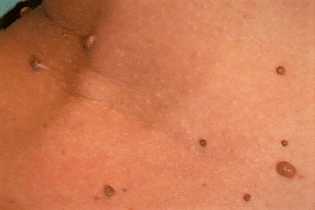 Viermii intestinali, leacul unor boli autoimune - Terapia helmintica