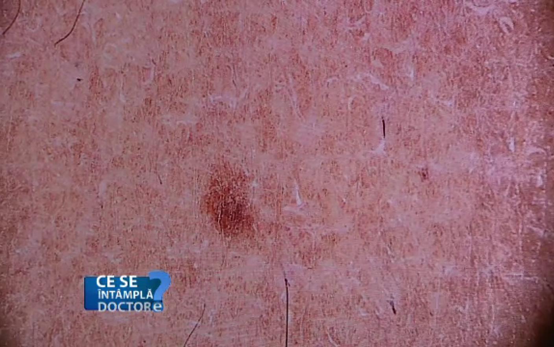 cancer de piele stadiul 4