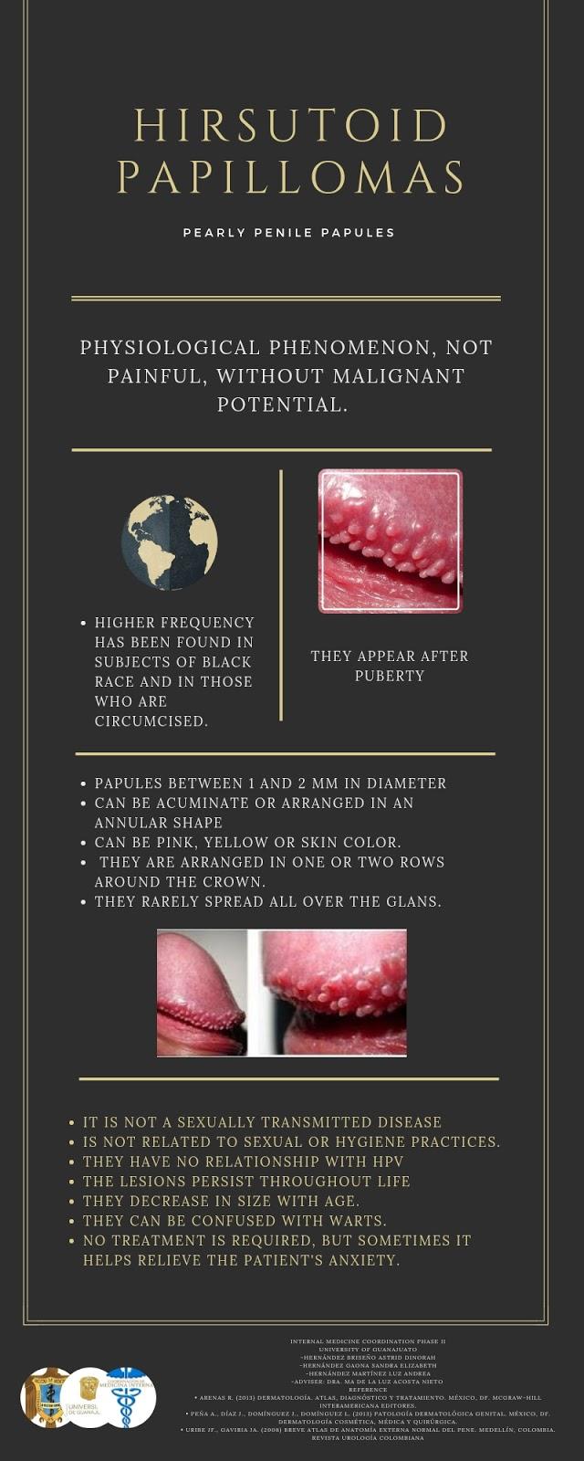 Papiloma hirsutoide en hombres, Infectie genitala Human Papilloma Virus (HPV)