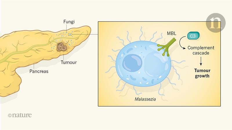 pancreatic cancer fungus)