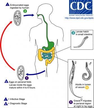 CDC - Enterobiasis - 4Treatment Enterobiasis cdc