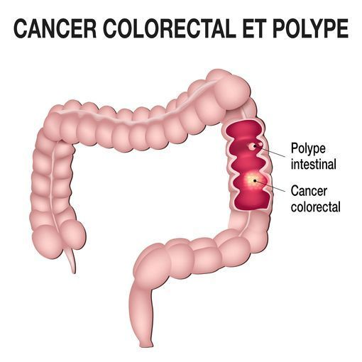 cancer colon gauche symptomes)