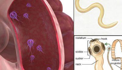 simptomele de vierme la copii papilloma virus vaccino dopo rapporti sessuali