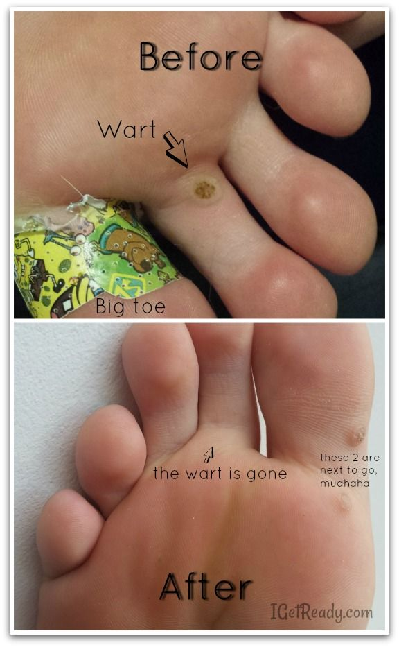 wart on foot won t go away