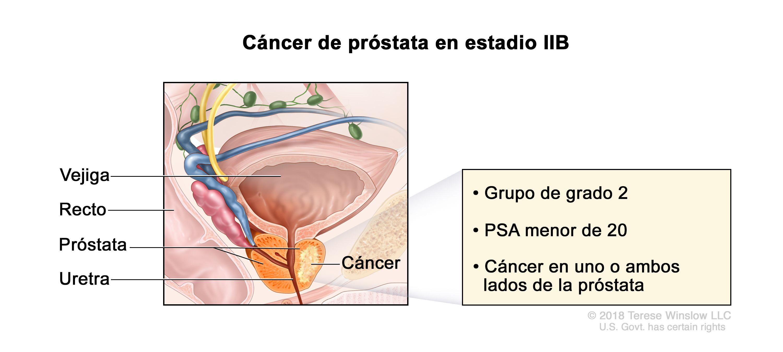 Cancer de colon etapas y sintomas, Cancer pulmonar etapas