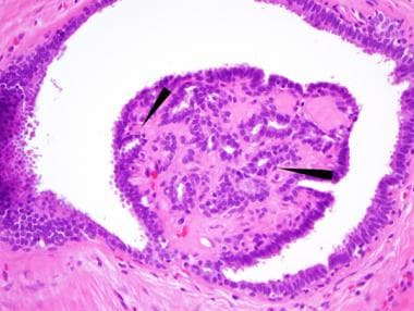 Papiloma ductal tratamiento. Papiloma intraductal contagio
