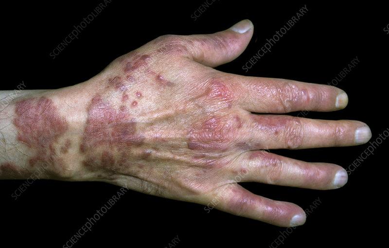 sarcoma cancer lesions)