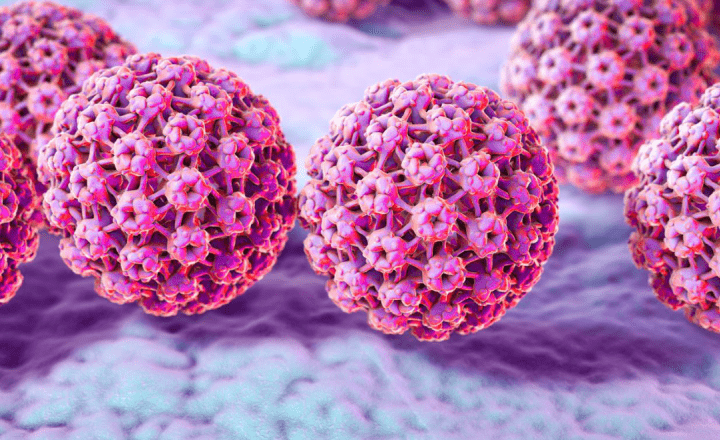 human papilloma virus papilloma