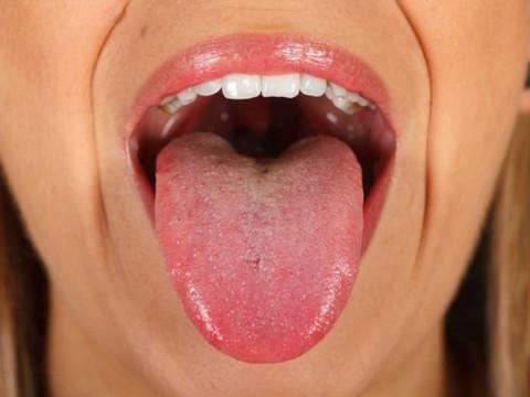 papiloma de boca