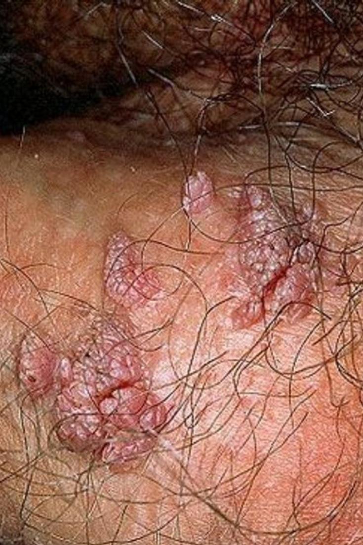Condylomes et papillomavirus