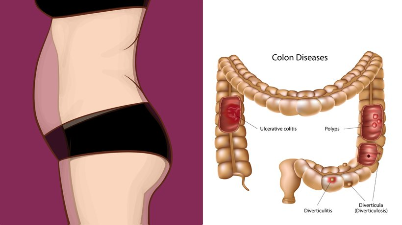 Cancer abdominal bloating -