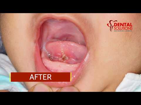 wart on baby s tongue)