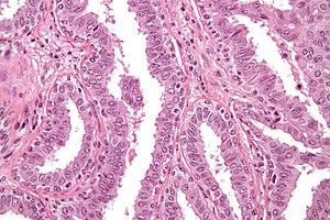 Breast papilloma libre pathology