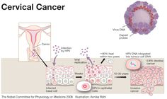 hpv causes of cancer)