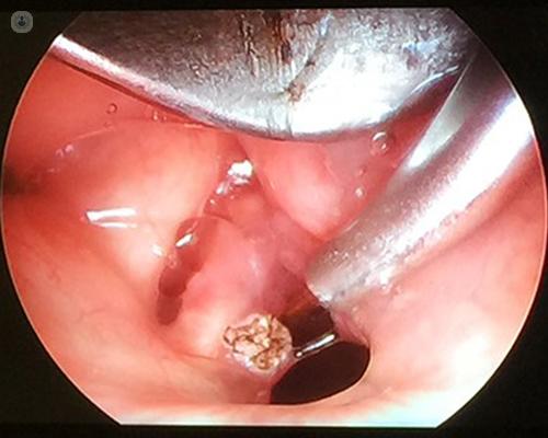 treatment of laryngeal papillomatosis