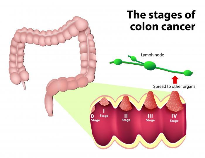 cancer colorectal definition)