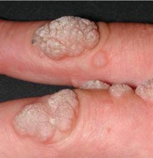 hpv human papilloma virus nedir