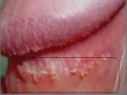 kutil hpv pada wanita human papillomavirus definition and symptoms