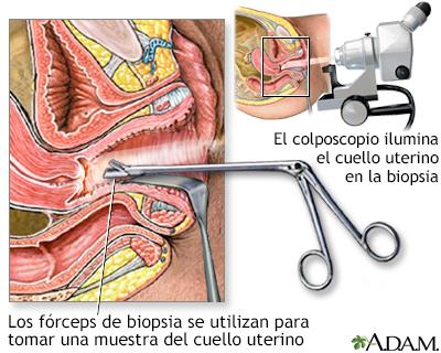 virus del papiloma biopsia detoxifierea colonului într un mod natural